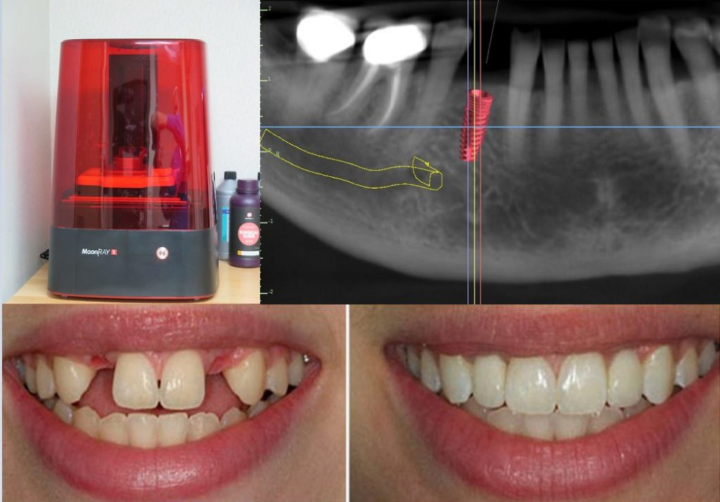 3D Printed Dental Implants in Minnetonka and Maple Grove Minnesota - Blue Ridge Dental Center